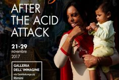 After the Acid Attack – in mostra a Rimini